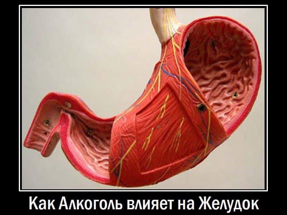 Алкогольный гастрит. Как алкоголь влияет на желудок.