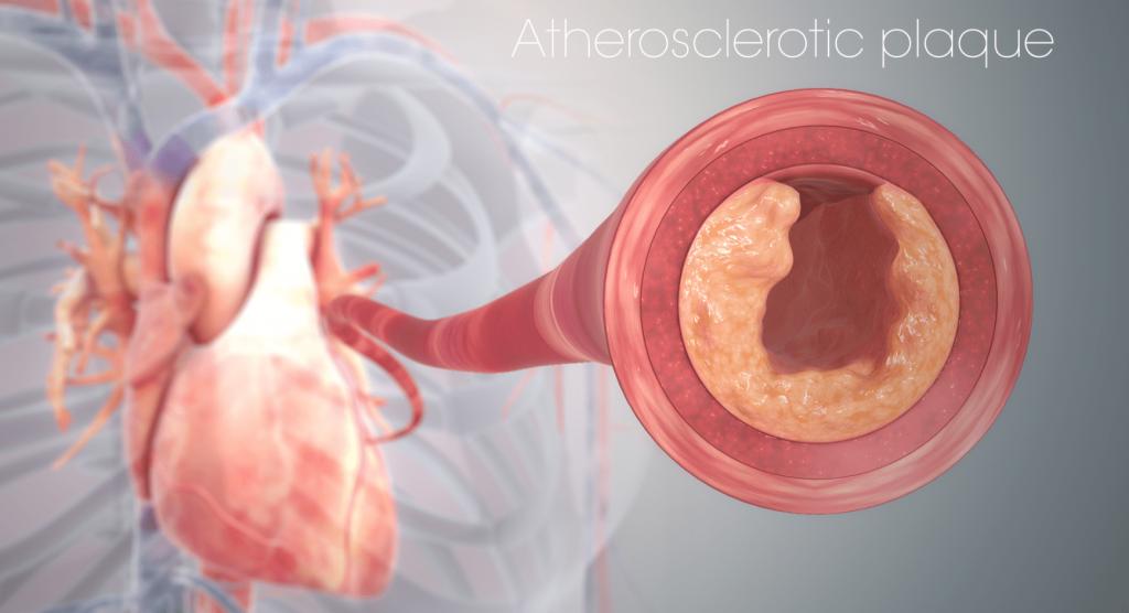 ИБС: Закупорка сосудов сердца холестерином