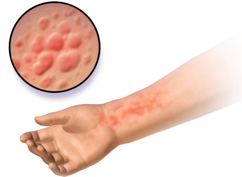 Алкоголь при аллергическом дерматите thumbnail