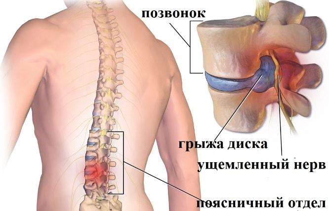 Ущемление нерва и выпячивание позвоночного диска