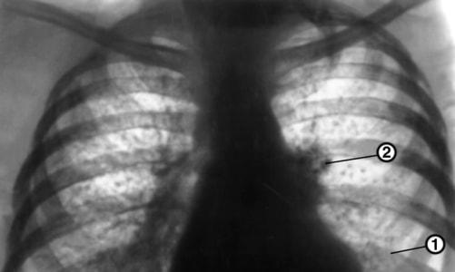 Туберкулез на рентген-снимке