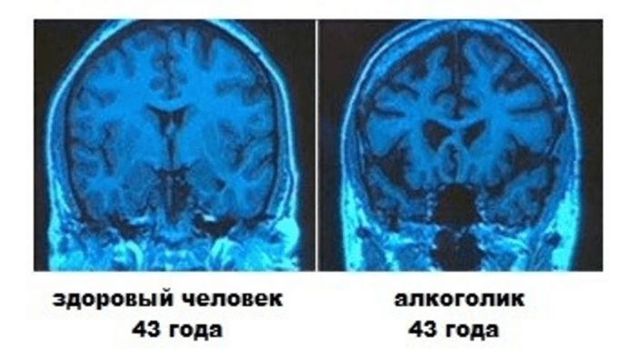 Энцефалопатия головного мозга на снимке