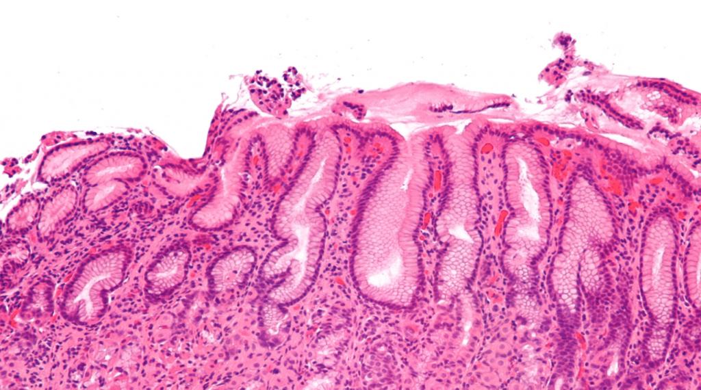 Стенка желудка при эзофагите и гастрите